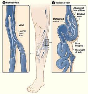 Photo of normal vein and varicose vein