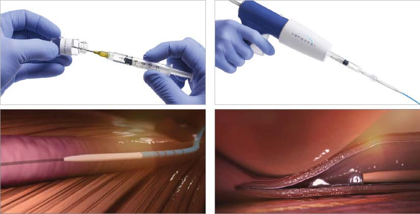 How the VenaSeal closure system works